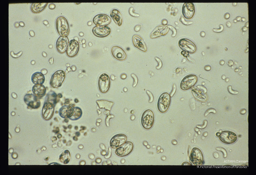 Sporocysts in fecal float from coyote. Sporocysts are excysting releasing sporozoites following incubation in CO2 followed by treatment with bile and trypsin.