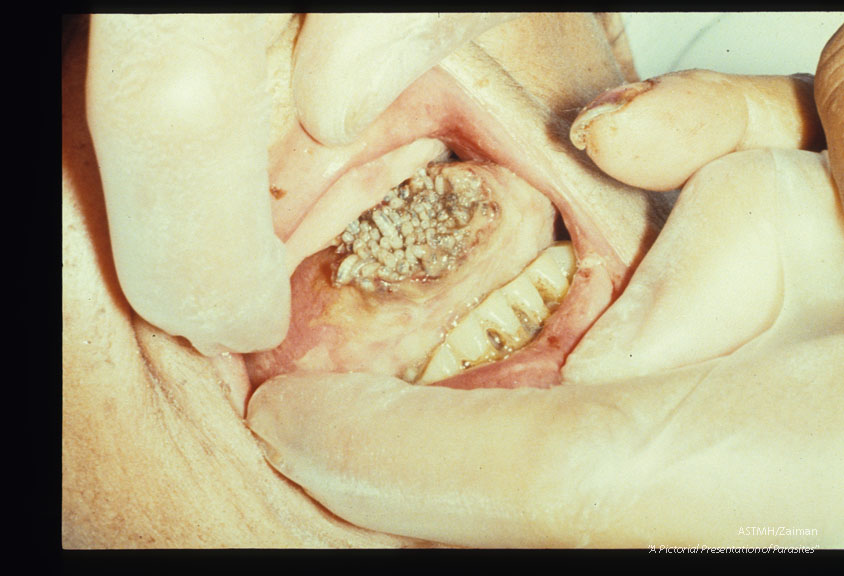 Rare case of myiasis of the tongue.