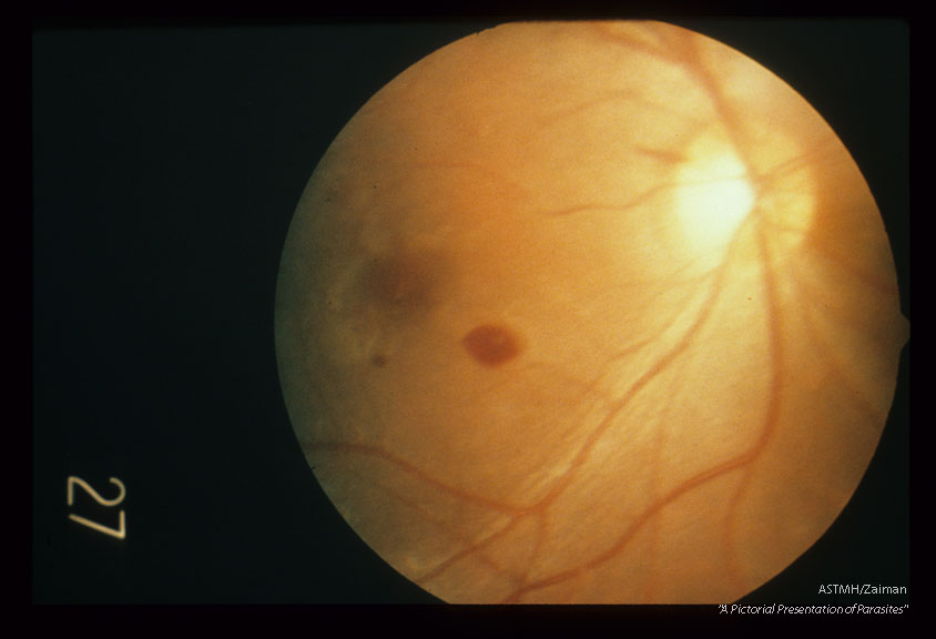 Retinal hemorrhage associated with cerebral malaria.