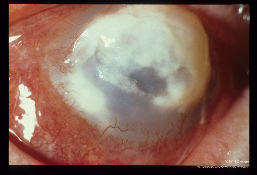 Progressive keratitis in 59 year old male rancher. Slide dated 1-9-74.