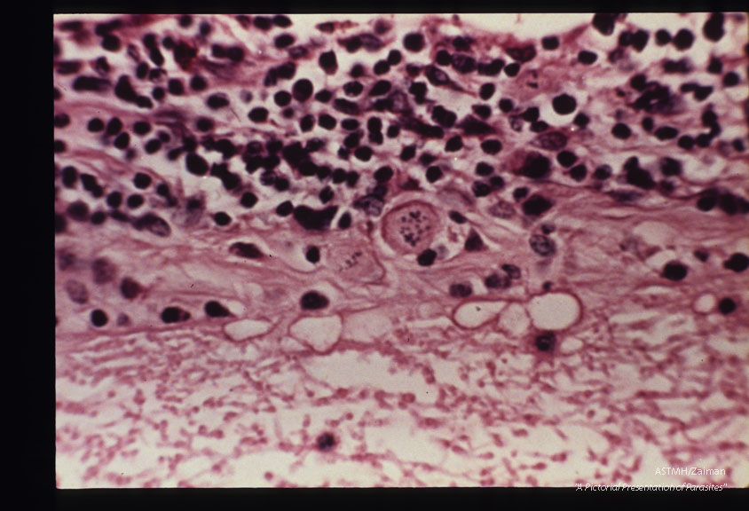 Rabbit retina with newly formed Toxoplasma cyst.