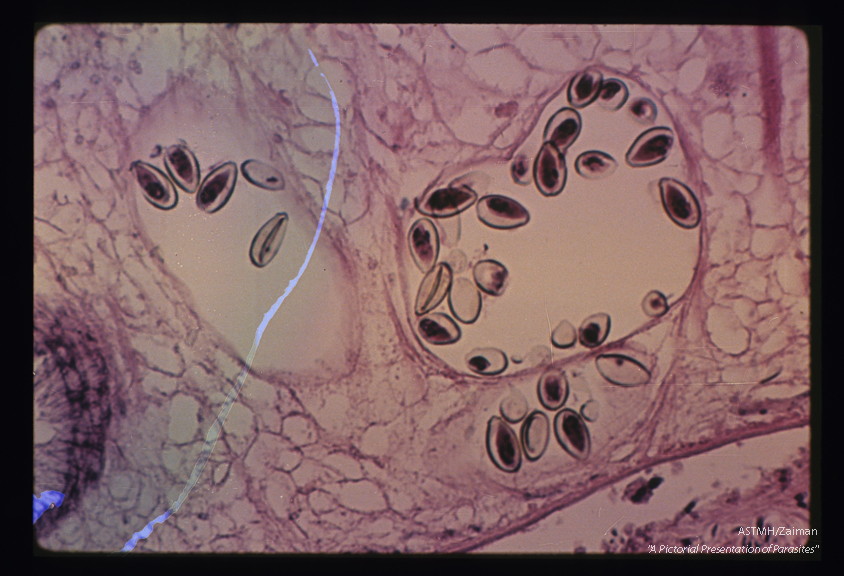 Eggs in adult within the bile duct. Note the way the operculum fits the rest of the egg.