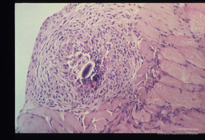 Mouse, BALB/c-Experimental infection as in 1957. Well-organized granuloma containing a coiled larva present within skeletal muscle at 8 months PI. HE, x 200.