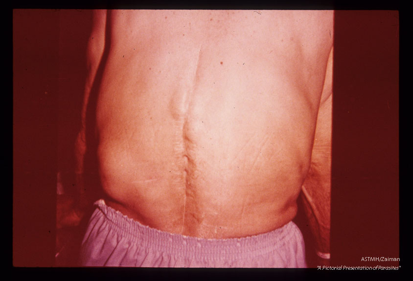 Posterior view showing scars of previous surgery, the large cyst in the left flank and several smaller ones near the upper end of the scars.