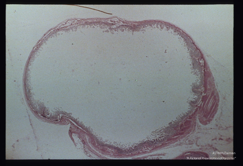 Gross pathology. Cross section of human gut showing atrophy of mucous layer.