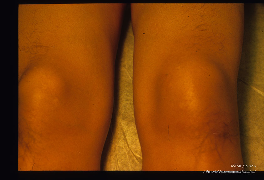 Calabar swelling of knee in 38 year old geologist who worked in Zaire for 3 years.