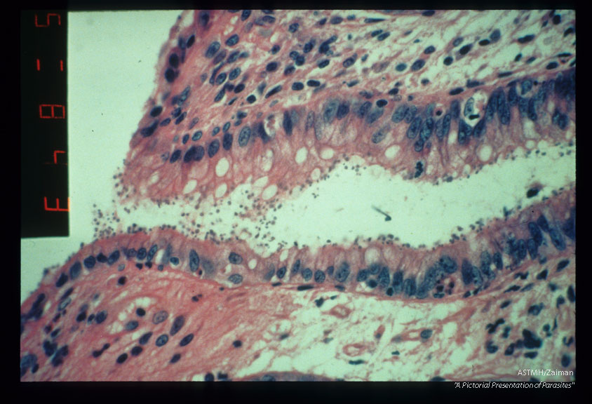Photomicrographs showing parasites in rectum. H&E stain.