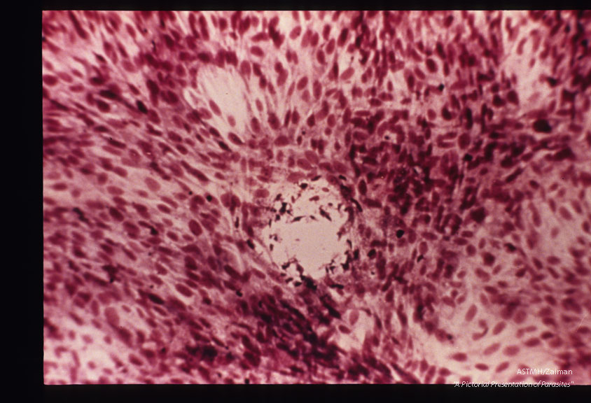Plaque formation in Hela cells infected with Toxoplasma.