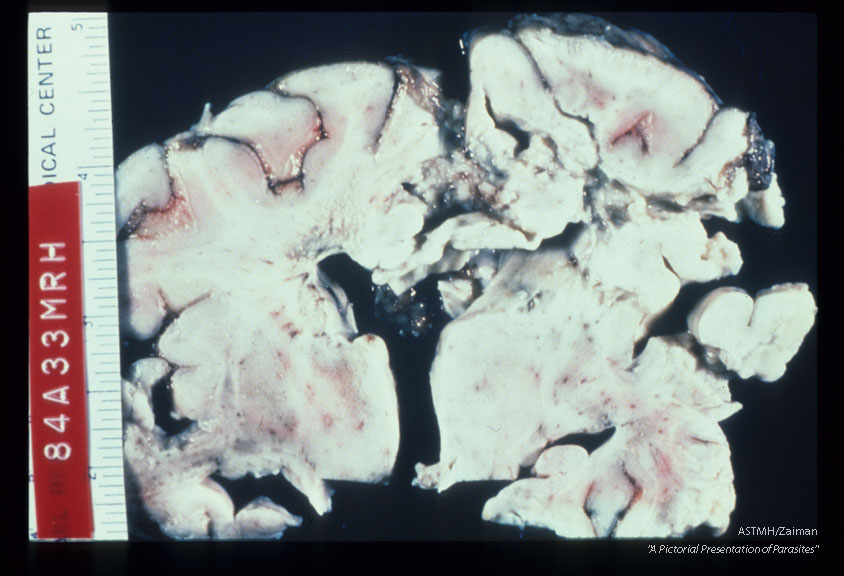 A one and one half year old boy died after a 3 week bout of CNS disease. Brain shows peri-ventricular necrosis and softening.