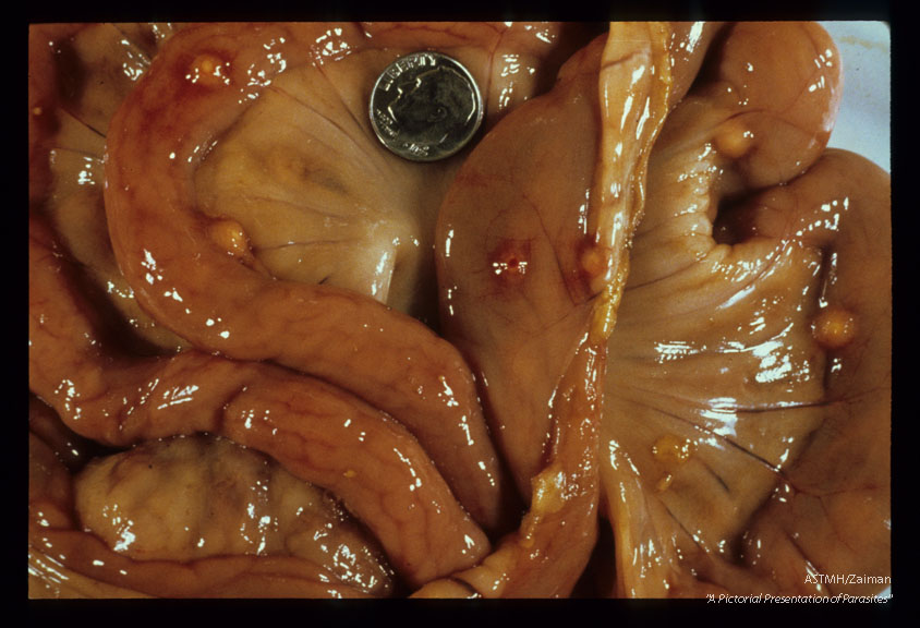 Gross view of opened hog abdomen showing multiple caseous nodules formed in response to worm attachment in the gut