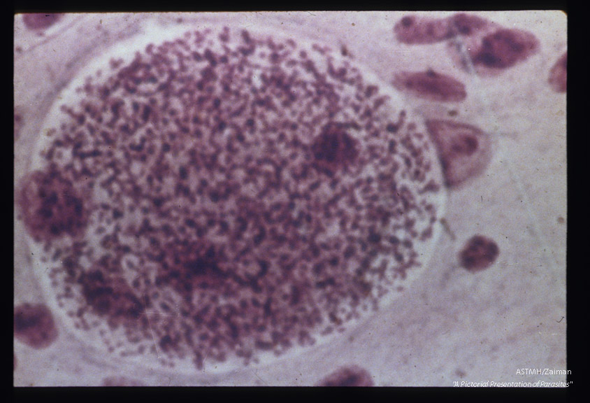 Hematoxylin-eosin stained cyst in mouse brain.