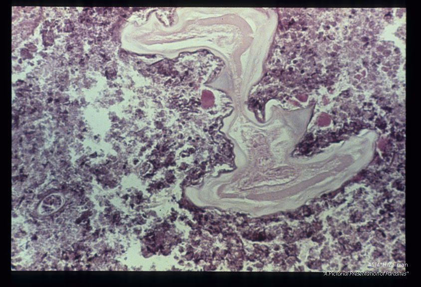 Low and high power views of parasite in pulmonary nodule.