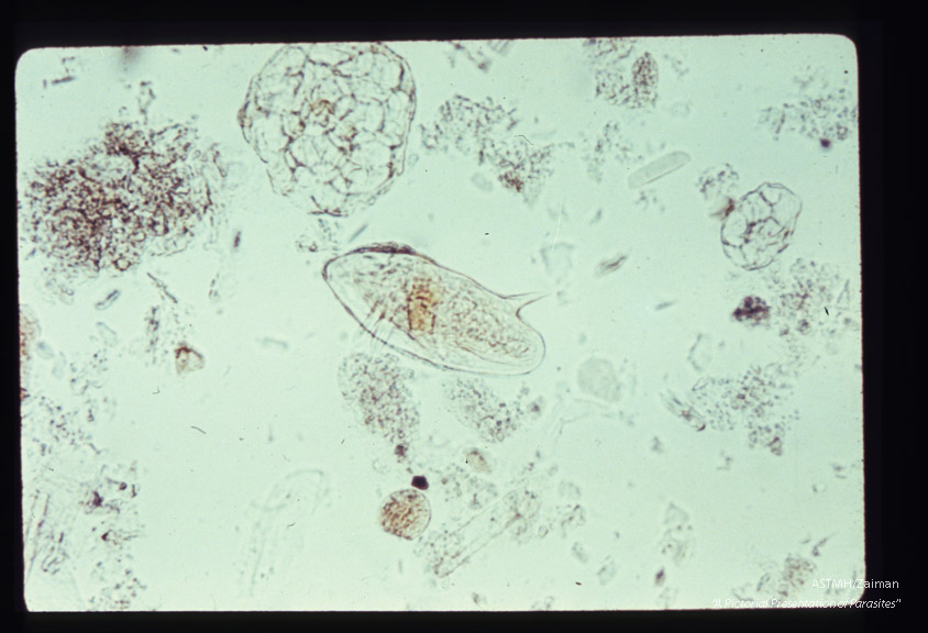 Lateral spined egg in stool.
