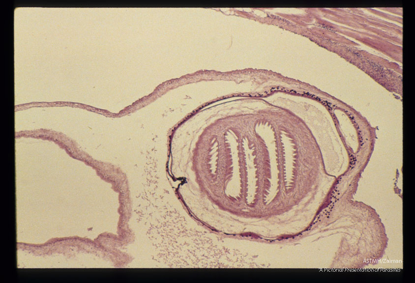 Cysticercus in pig muscle.