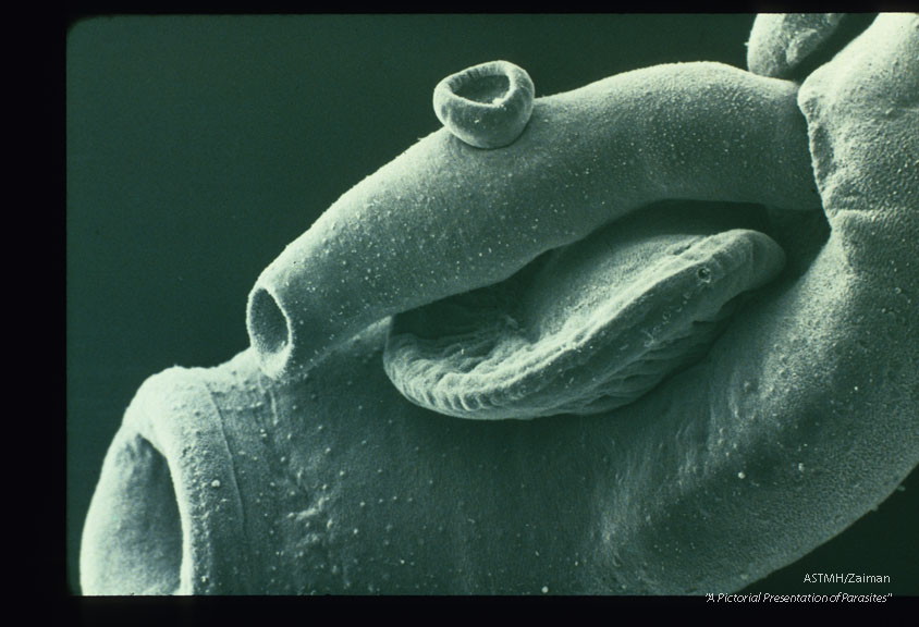 SEM showing anterior portion of male and female.