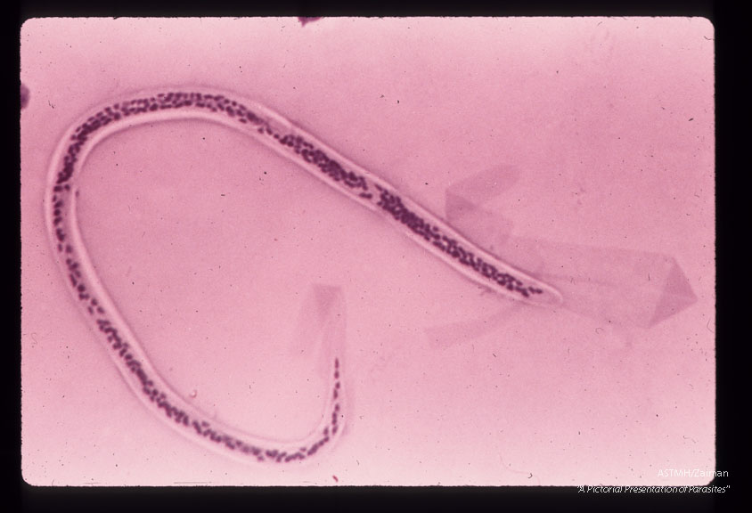 Entire microfilaria in blood film.