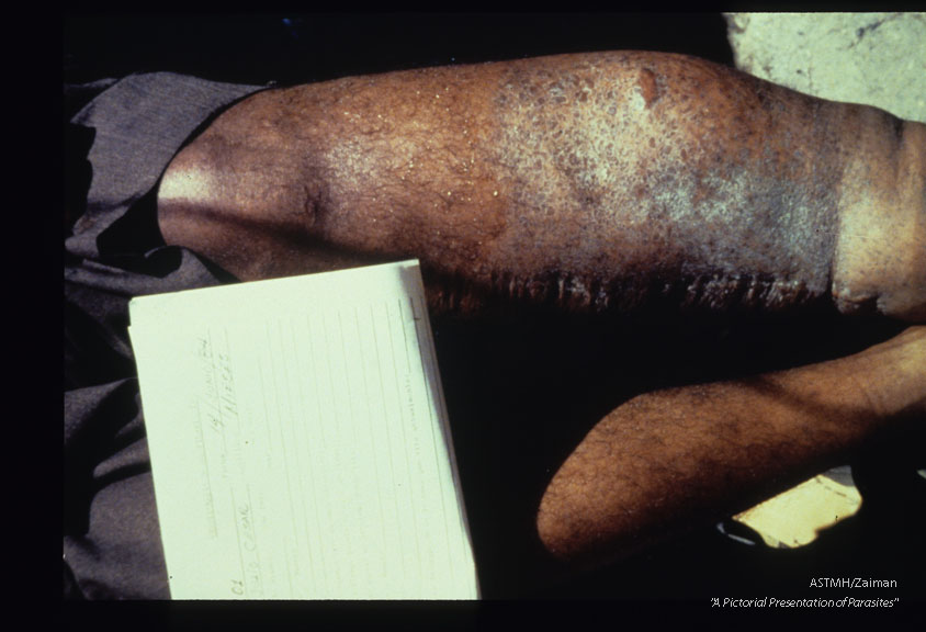Thirty year old male. Left leg has moderate elephantiasis, hyperkeratosis, and a medial incision scar from a Thompson operation. The boundary of atrophic and normal skin is sharply marked. There is loss of hair and sweat glands. The skin is rough.