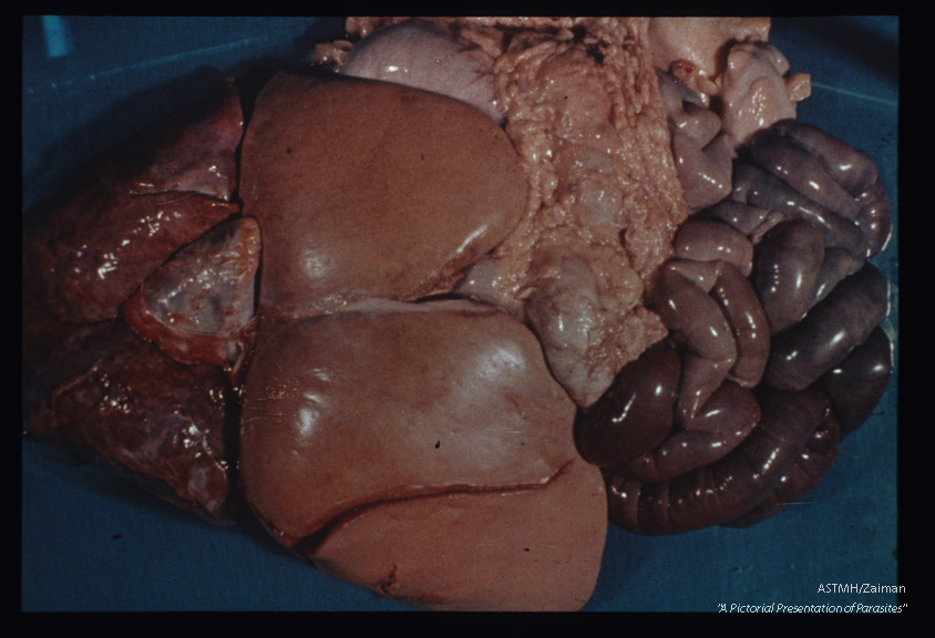 Gross pathology. Fatty degeneration of human liver associated with infection.