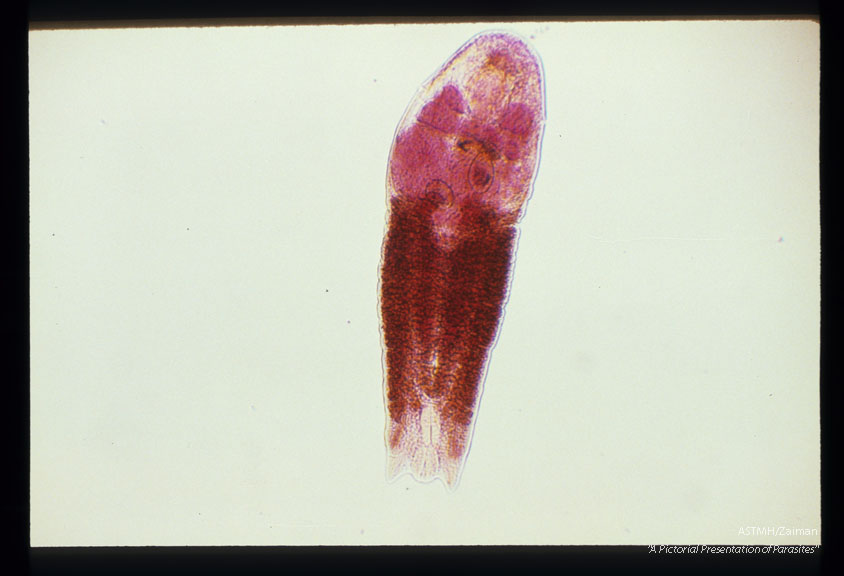 Adult from an experimentally infected cat. Carmine stain.