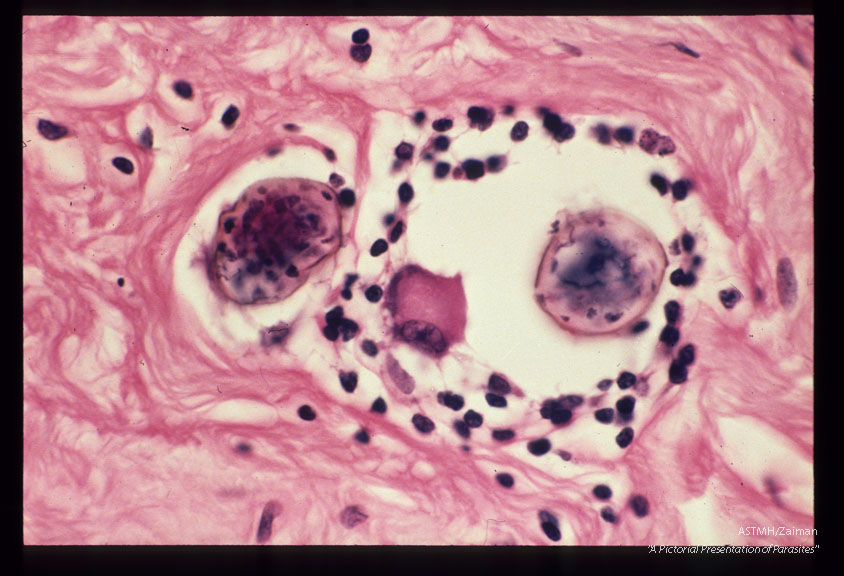Fallopian tube with granulomata containing parasite eggs.