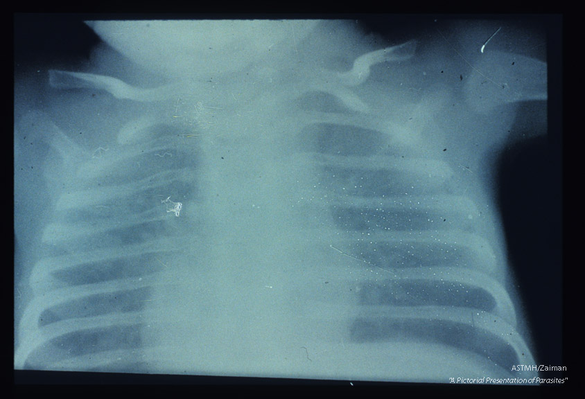X-ray of child with pneumonia showing the characteristic ground glass appearance of such lungs.