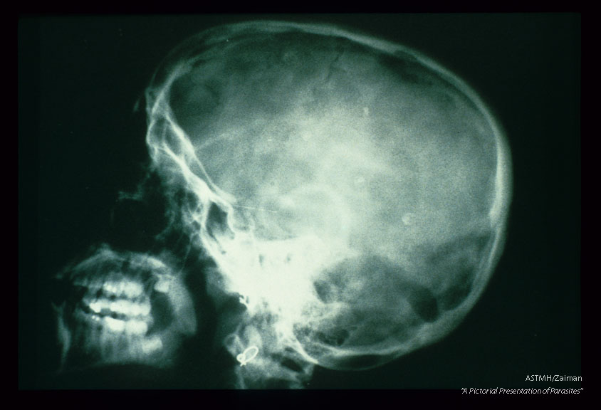 A lateral view of the skull shows multiple small amorphous punctate white calcific masses in the brain. These are calcined cysticerci. Some of these lesions are remarkable for presenting in a target-like configuration. The outer line represents calcification of the bladder wall. The inner dot is the calcified scoiex. The dark area surrounding the scolex is fluid.