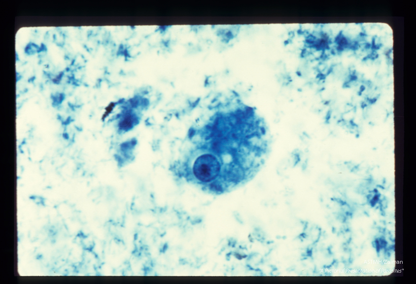 Trophozoite. Iron hematoxylin stain. A karyosome (endosome) within the nucleus is eccentric and large.