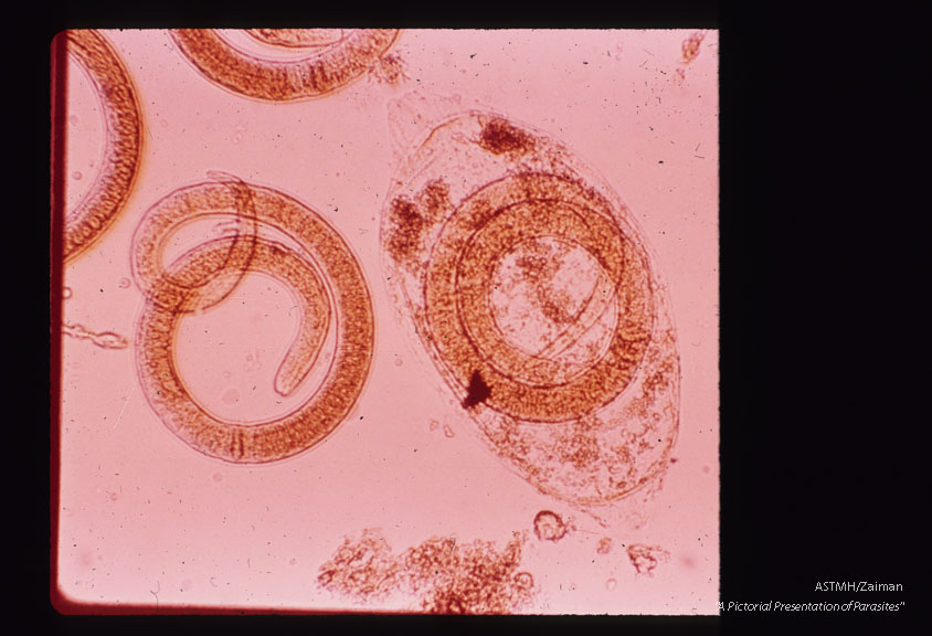 Larvae digested free from muscle. One larvae still partially surrounded by cyst wall.