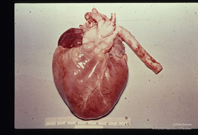 Heart showing typical pale, wet, flabby, swollen appearance due to myocarditis.