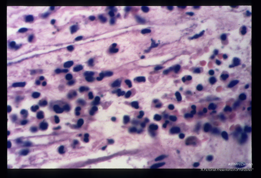 Chronically inflamed choroid plexus.