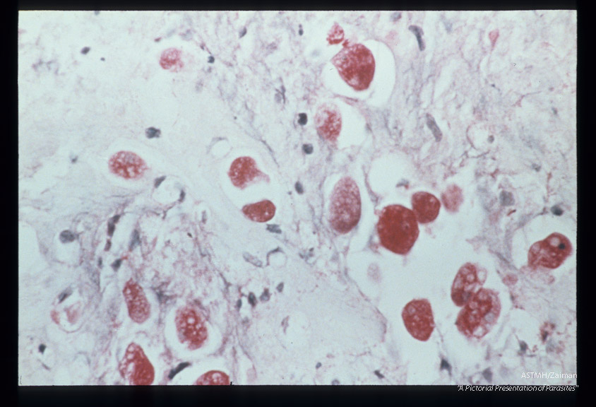 Best carmine stained section of rectum. Note cytolysis around amoebas.