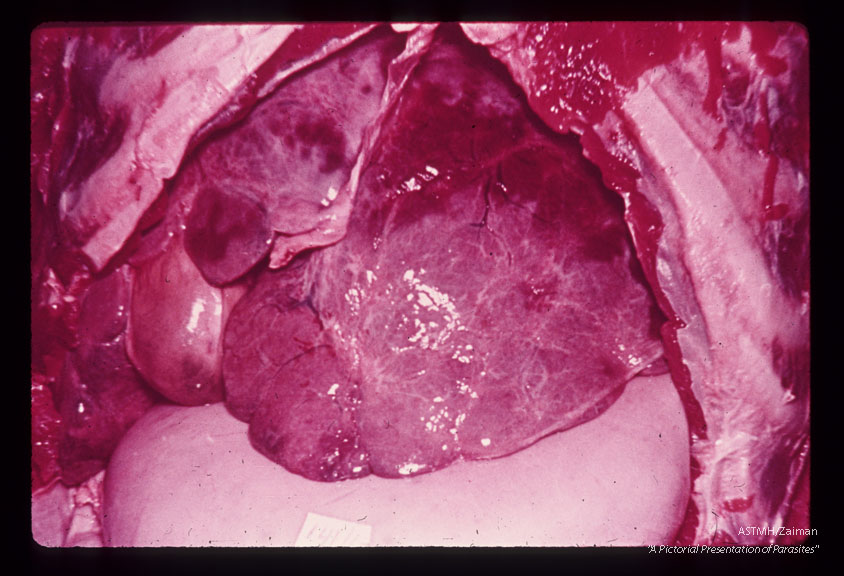 Autopsy specimen of 27 year old Brazilian male who died of hematemesis associated with hepatosplenomegaly. One hundred-eighty-three active adult pairs were counted at autopsy. The external surface of the liver was bosselated. Although this was the most typical appearance, the liver surface is sometimes smooth or finely nodular in such cases.