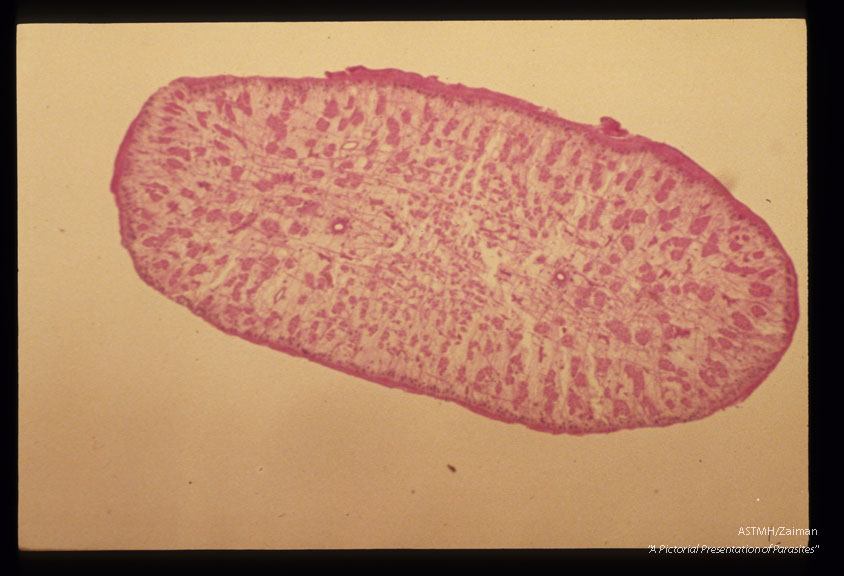 Multiple cross sections through the parasite at various magnifications are presented.
