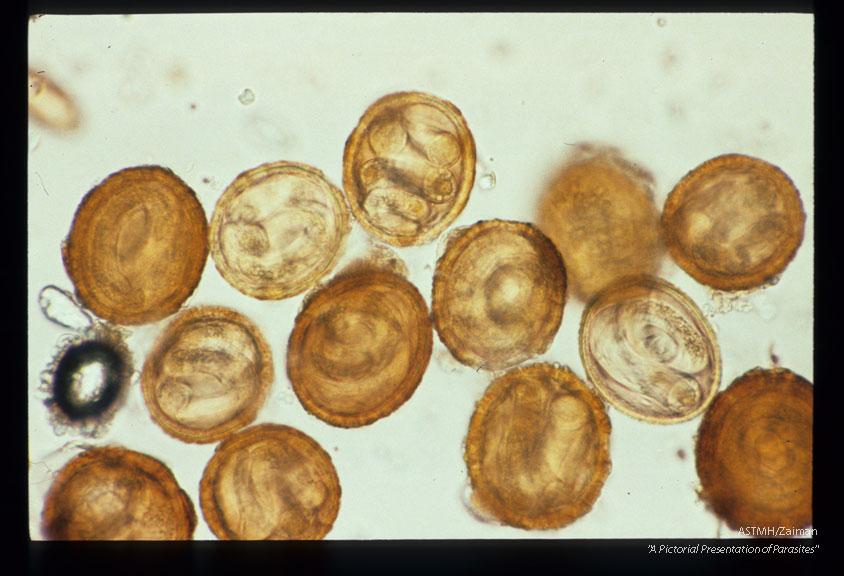 Infective eggs recovered from soil in a rabbit cage which had previously housed raccoons.