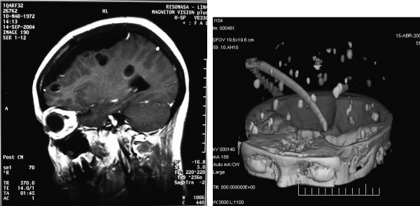 ASTMH - Clinical Images Quiz #3