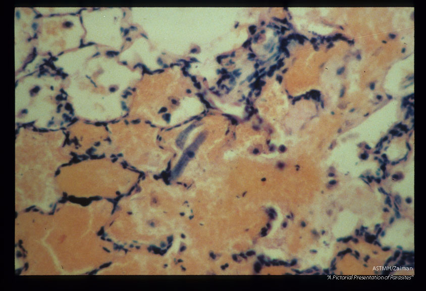 Larvae are present in an area of pulmonary hemorrhage within an experimentally infected Erythrocebus patas.