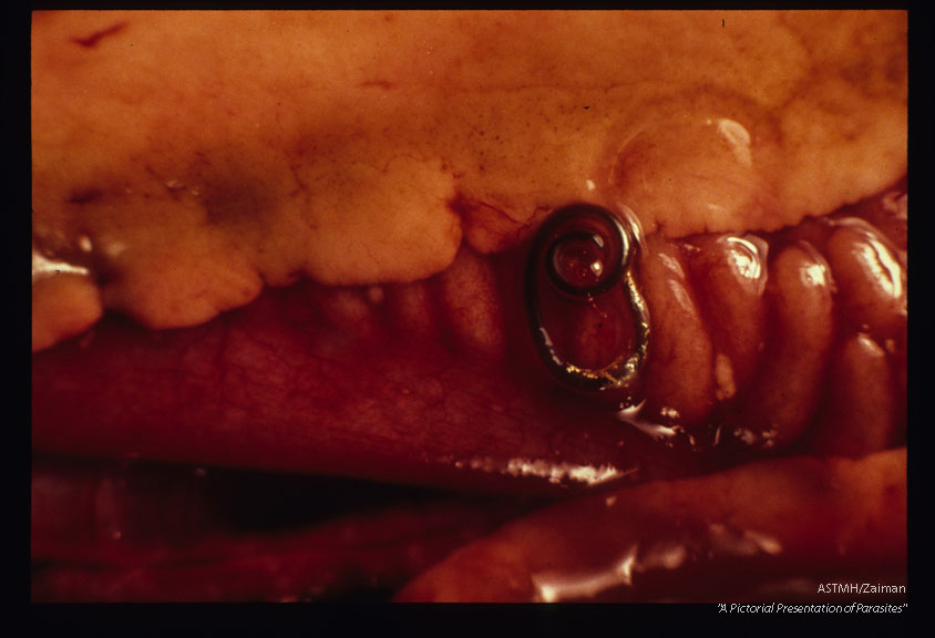 Nematodes in fish flesh and viscera.
