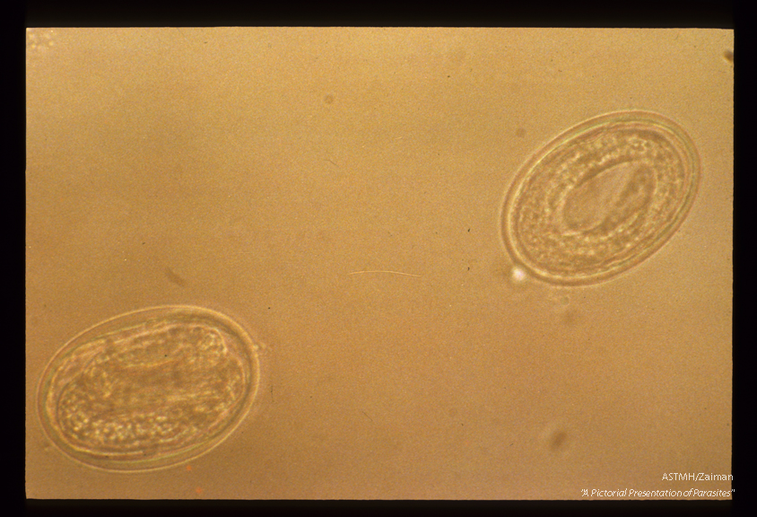 Embryonated, decorticated eggs. These eggs were permitted to develop embryos before being photographed, in order to demonstrate their viability.