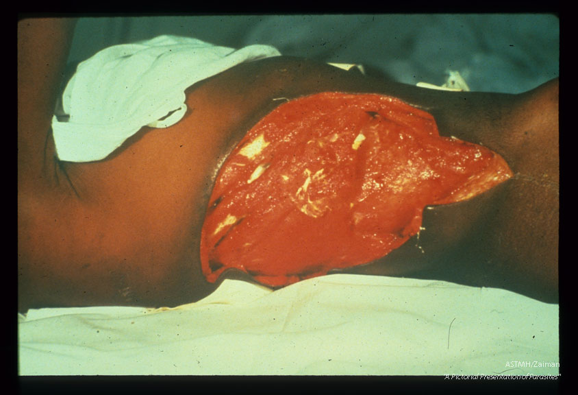 The huge red lesion is a cutaneous ulcer due to amoebiasis of the skin of the right body wall. The white garment covers the lady's breast.