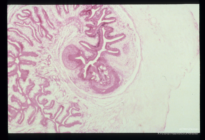Photomicrographs of a subcutaneous nodule in a patient.