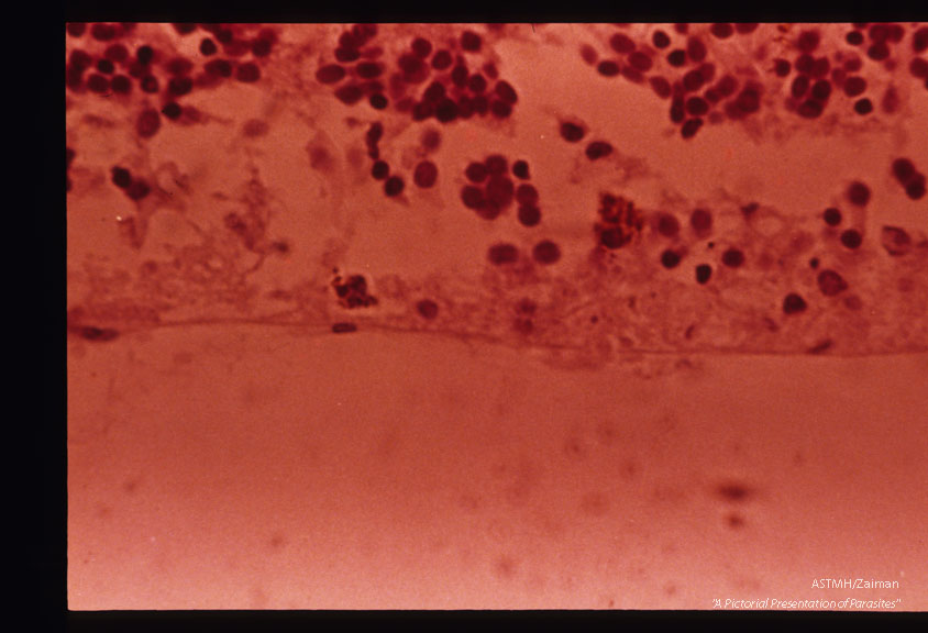 Toxoplasmic retinochoroiditis with Toxoplasma groups in center. H&E stain.