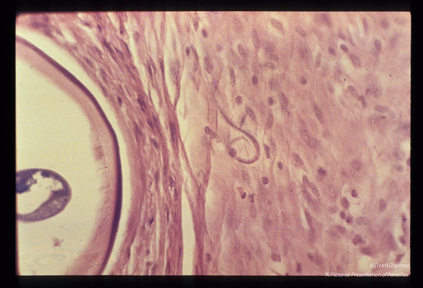 High power view showing microfilaria in nodule of fibrotic tissue adjacent to adult.