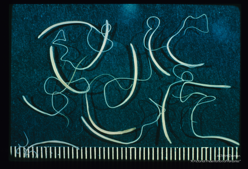 Several adult females are shown. Note the thick posterior and thin anterior portions of the worms which simulate a whip handle and lash.