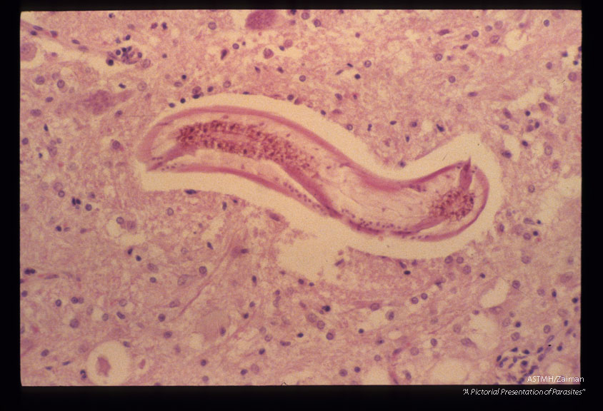 Larva in rabbit cerebrum.