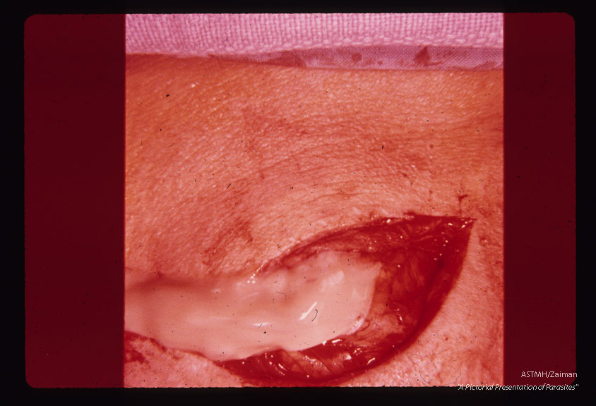 Incision into cyst permits escape of pseudopurulent material.