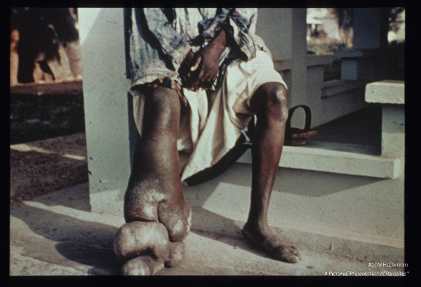 Elephantiasis of lower extremity.