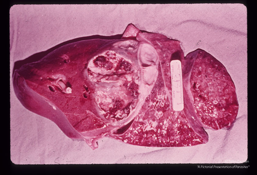 Autopsy specimen showing abscess involving liver and diaphragm resulting from migrating adult ascarids. One transected adult ascarid protrudes from a bile duct.