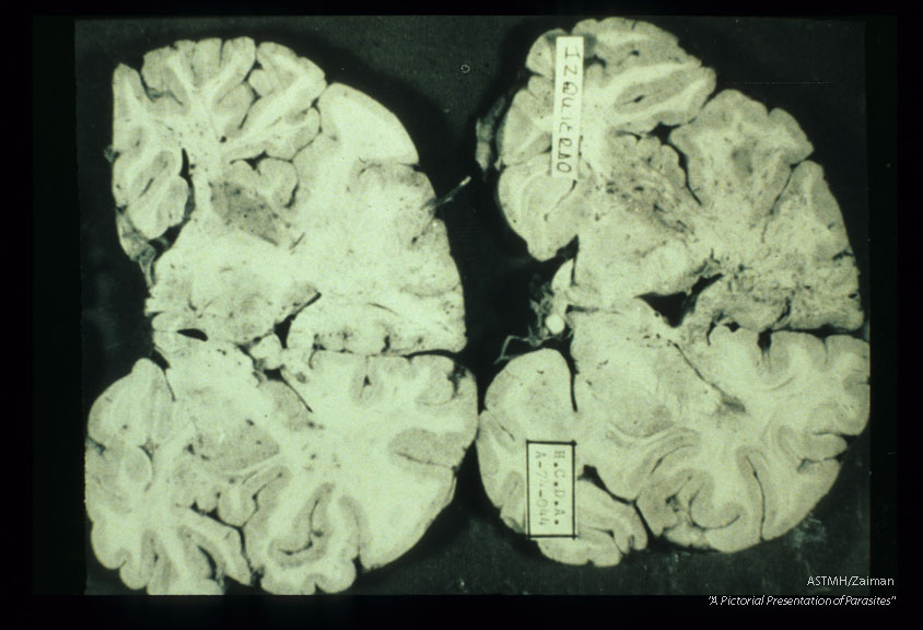 Brain slices showing massive destruction due to granulomatous amoebic encephalopathy.