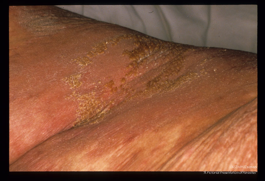 "Severe skin lesions. ""Norwegian scabies""."