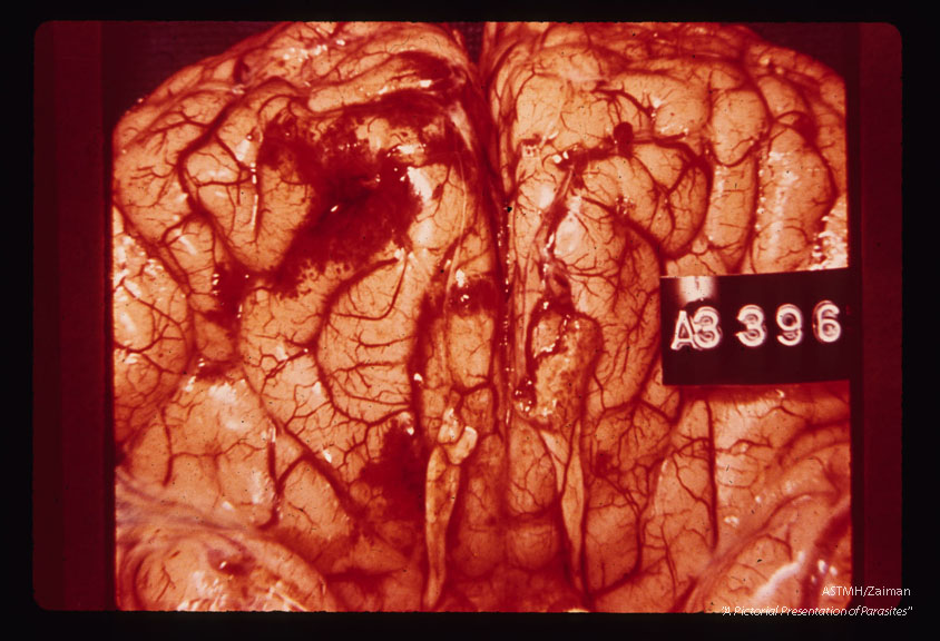 Lee case of primary amoebic meningoencephalitis. Whole brain.